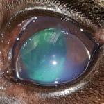 anterior-lens-lux-e1550746319206