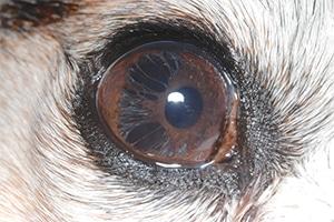 pseudopolycoria-due-to-iris-atrophy2