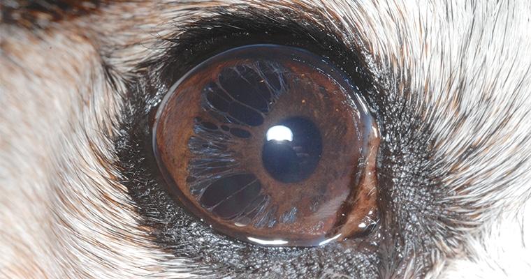 pseudopolycoria-due-to-iris-atrophy3